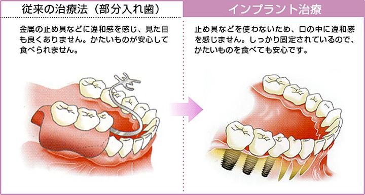 奥歯を失った場合